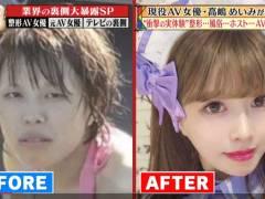 整形に700万円かけた新人AV女優の顔面の変化が凄い件